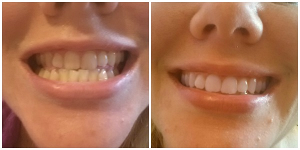 Before and after using the Smile Brilliant custom trays
