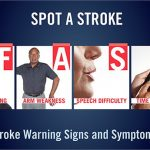 Do You Know the Warning Signs of a Stroke? #singFAST