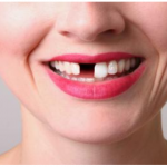 Most Common Causes of Tooth Loss